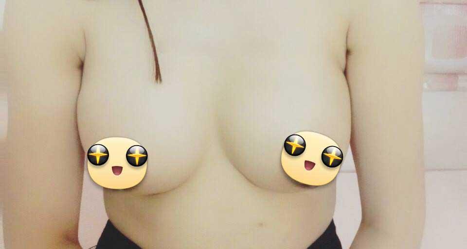 nâng ngực nội soi ở đâu an toàn - Hong Trang