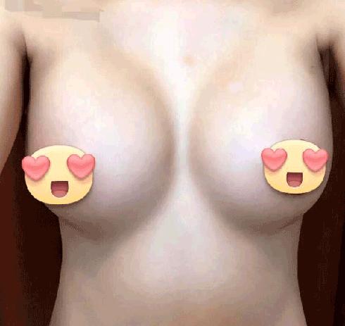 nâng ngực nội soi 3d-NguyNanh