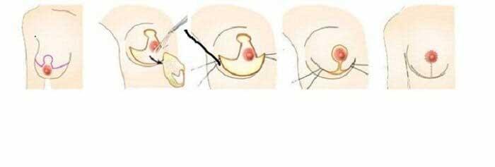 Những điều cần biết trước khi nâng ngực