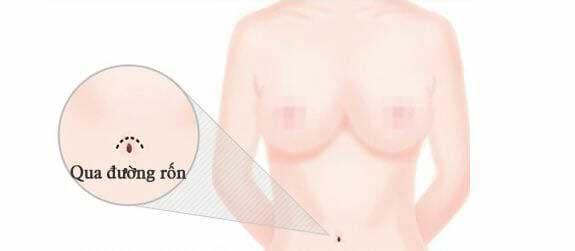 Nâng ngực nội soi nên chọn đường mổ nào?