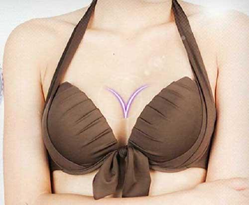 Nâng ngực nội soi bằng túi Inspira và những bí mật vô cùng thú vị