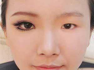 Khám phá phương pháp cắt mí mắt to hiện nay Ahihi-e1545881508482