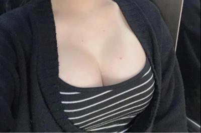 Thẩm mỹ nâng ngực không cần phẫu thuật - Tamsudaokeo