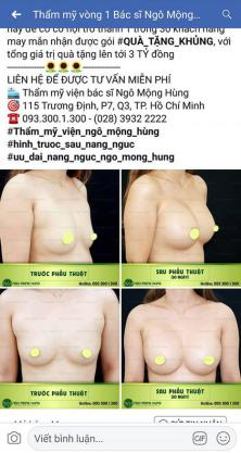 nâng ngực webtretho
