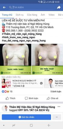 nâng ngực chảy xệ bằng phương pháp nội soi