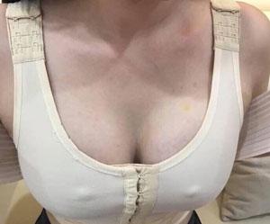 nâng ngực kiêng gì