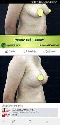 làm gì để ngực không bị chảy xệ
