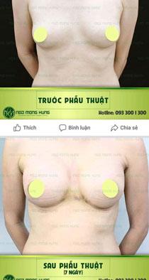 thẩm mỹ viện ngô mộng hùng nâng ngực nội soi có tốt không