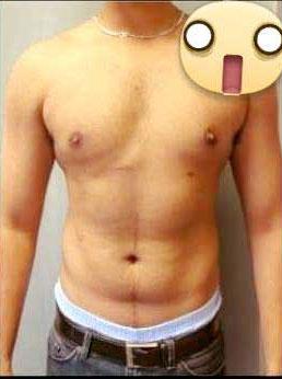 cách giảm ngực chảy xệ ở nam