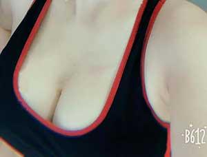 Phải làm thế nào khi ngực chảy xệ? Tamsudaokeo