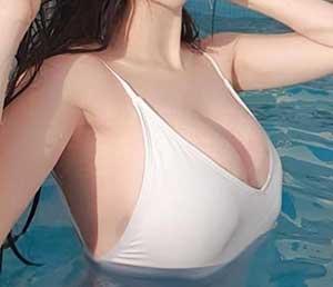 phòng chống ngực chảy xệ