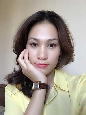 Cách khắc phục sau khi cắt mí mắt bị sưng? Tamsudaokeo Mat-35-sau-cmm14