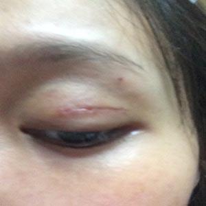rủi ro khi cắt mí mắt