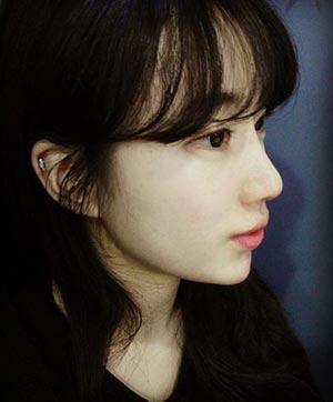 Phẫu thuật vách ngăn mũi có đau không