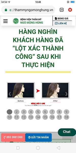 Địa chỉ phẫu thuật mũi tại Thái Lan