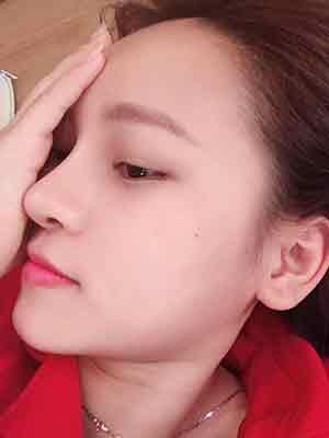 Nâng mũi có hại không