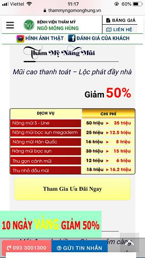 địa chỉ nâng mũi đẹp ở Sài Gòn