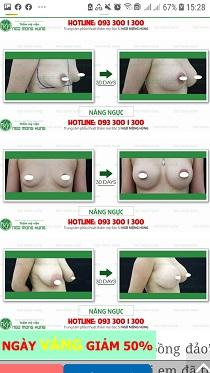 cấy chỉ nâng ngực có an toàn không