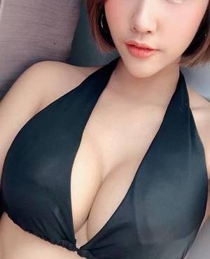 Nâng ngực nội soi ở Hàn Quốc